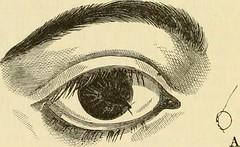 Anglų lietuvių žodynas. Žodis anaesthetic reiškia 1. a anestezinis; 2. anestezinė priemonė lietuviškai.