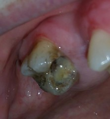 Upper right infected tooth (Teresa Trimm) Tags: tooth teeth cavity cavities dentist dental infection infections baby gum gums
