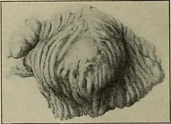 Anglų lietuvių žodynas. Žodis chorionic villus reiškia chorioninio villus lietuviškai.