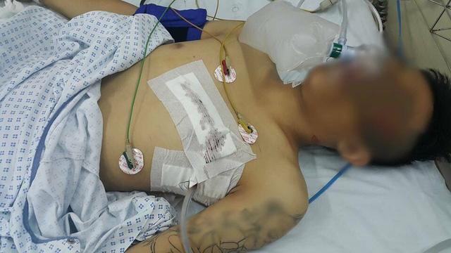 Nam thanh niên 18 tuổi bị đâm thấu ngực