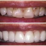 Veneers (dr.farisvelia) Tags: dentist stourbridge redditch emergency kidderminster