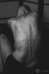 IMG_8765logo (zenimaging) Tags: cancer liver portrait seminude canoneosrebelsl1100d body figure health medicine