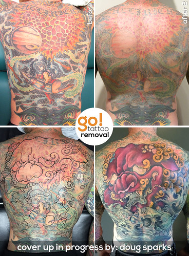 Laser Tattoo Removal to Tattoo Cover Up