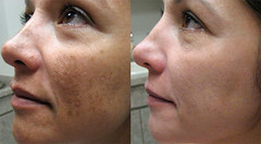 Hyperpigmentation - Its Causes and Treatments (kunwarpalsolanki) Tags: hyperpigmentation causes treatments