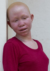 Tanzania, East Africa, Dar es Salaam, pendo serengema a girl with albinism at under the same sun house, she lost her right arm (Eric Lafforgue) Tags: africa charity portrait people childhood vertical tanzania person photography african daressalaam belief human believe innocence albino teenager genetic humanbeing oneperson curse ngo healer eastafrica witchdoctor tanzanian mutilated albinos pwa colorimage whiteskin lookingatcamera albinism underthesamesun oneteenagegirlonly colourimage africanethnicity 1people onegirlonly colourpicture utss tz185