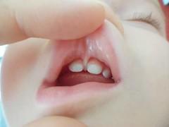 FB_IMG_1445158580231 (Nicolaspeakssometimes) Tags: skin liptie