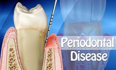 Periodontal Disease Can Trigger Vascular Inflammation (canvasdevelopment) Tags: periodontaldisease periodontaldiseasecauses periodontaldiseasesymptoms periodontaldiseasetriggers drymouthmouthwash gumdisease badbreath recedinggumstreatment swollengums