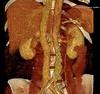 Veine rénale gauche rétroaortique , se jetant dans la veine azygos jusqu'à son abouchement dans l'oreillette droite (Poliplane) Tags: hopital antibes radiologie imagerie médicale scanner irm x rays medical dantibes france noir et blanc monochrome intérieur hôpital polito patrick philips toshiba général electric échographie sex tape