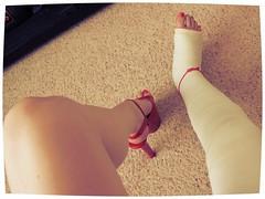 111 (katyacaster) Tags: broken leg cast woman