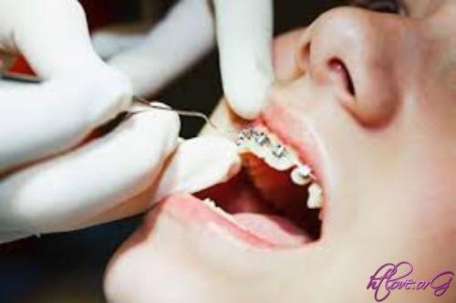 Hiệu quả của niềng răng