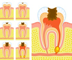 Formació de la Càries (josemalleida) Tags: set illustration tooth gum decay dental collection medical health diagram anatomy medicine pulp sick jawbone toothache healthcare vector dentistry isolated decayed disease infection abscess enamel molar inflammation anatomical ailment inflamed periodontitis internalstructure periodontal caries gingiva dentin carious toothcrown humantooth dentalmedicine periodontium toothroot pulpitis