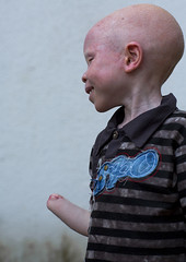 Tanzania, East Africa, Dar es Salaam, baraka cosmas a boy with albinism at under the same sun house, he lost his right hand in a witchcraft attack (Eric Lafforgue) Tags: africa charity portrait people childhood vertical tanzania person photography child african daressalaam belief human believe innocence albino genetic humanbeing oneperson curse ngo healer eastafrica witchdoctor tanzanian mutilated albinos pwa colorimage whiteskin albinism underthesamesun oneboyonly colourimage africanethnicity 1people colourpicture utss tz162
