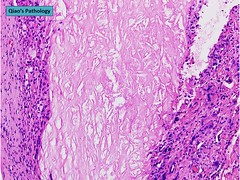 Qiao's Pathology: Unstable Atherosclerotic Plaque with Necrotic Core and Marked Inflammation of Fibrous Cap (Qiao's Pathology (Art and Science in Medicine)) Tags: plaque cap microscopic core pathology unstable marked inflammation fibrous qiaos necrotic atherosclerotic