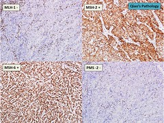 Qiao's Pathology: Colon Cancer with Loss of MLH-1 and PMS-2 Mismatch Repair Proteins (Qiao's Pathology (Art and Science in Medicine)) Tags: loss cancer repair mismatch pathology colon proteins qiaos pms2 mlh1