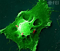 Bacterial killers (FEI | Part of Thermo Fisher Scientific) Tags: fei microscopy nanotechnology nanoimage magnification feiimagecontest inspect lifesciences cellularbiology bacteriainfectionhumancelltoxins