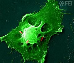 Bacterial killers (FEI Company) Tags: fei microscopy nanotechnology nanoimage magnification feiimagecontest inspect lifesciences cellularbiology bacteriainfectionhumancelltoxins