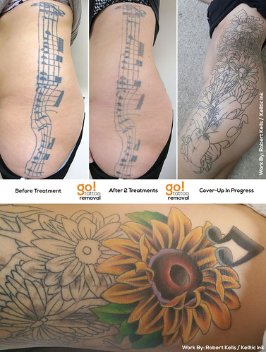 Laser Tattoo Removal To Cover-Up