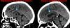 Agénésie du corps calleux, découverte fortuite chez une personne âgée (Poliplane) Tags: hopital antibes radiologie imagerie médicale scanner irm x rays medical dantibes france noir et blanc monochrome intérieur hôpital polito patrick philips toshiba général electric échographie