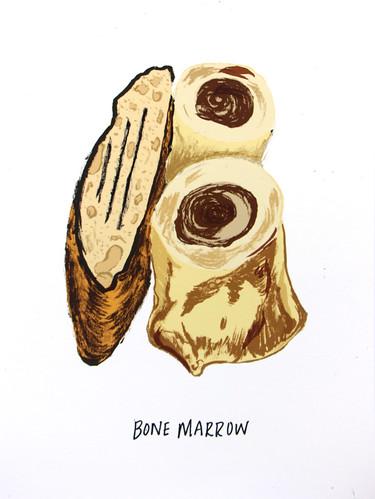 by: Vidhya Nagarajan/ Bone Marrow