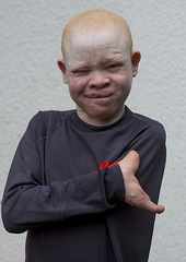 Tanzania, East Africa, Dar es Salaam, emmanuel festo a boy with albinism at under the same sun house, his left armwas hacked off above the elbow, he lost fingers on the right hand and his tongue was wounded by an attack (Eric Lafforgue) Tags: africa charity portrait people childhood smiling vertical tanzania person photography child african daressalaam belief human believe innocence albino genetic humanbeing oneperson curse ngo healer eastafrica witchdoctor tanzanian mutilated albinos pwa colorimage whiteskin lookingatcamera albinism underthesamesun oneboyonly colourimage africanethnicity 1people colourpicture utss tz166