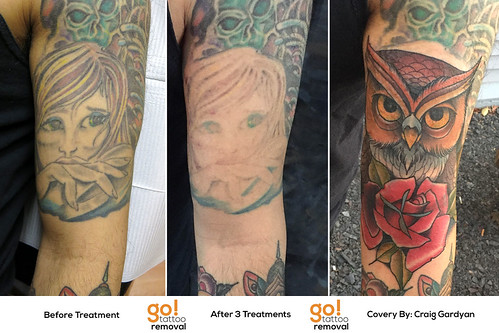 Laser Tattoo Removal to Tattoo Cover-Up