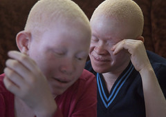 Tanzania, East Africa, Dar es Salaam, albinos teens at under the same sun house (Eric Lafforgue) Tags: africa charity people woman childhood horizontal tanzania person photography women african daressalaam belief human believe innocence albino genetic 2people twopeople humanbeing curse ngo healer eastafrica witchdoctor tanzanian teenagegirls mutilated albinos pwa colorimage whiteskin albinism underthesamesun colourimage africanethnicity colourpicture utss tz180
