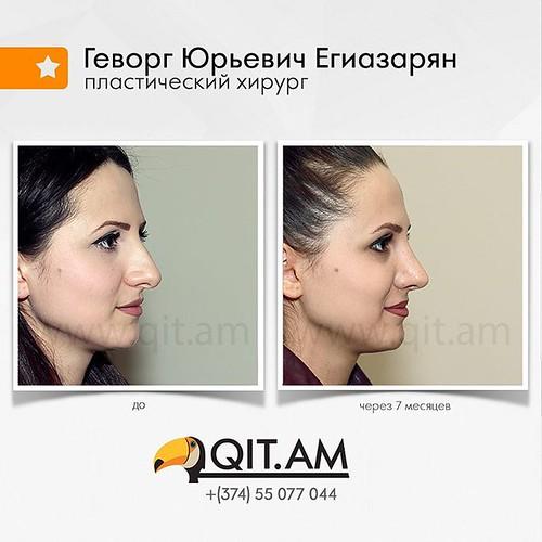 276-е фото в галерее до и после ринопластики.  7 месяцев после операции.  #пластический #хирург #ГеворгЮрьевич #Егиазарян #нос #рино  #nosejob #пластика #ринопластика #пластиканоса #красивыйнос #операция #операционная #доипосле #допосле #Ереван #Армения