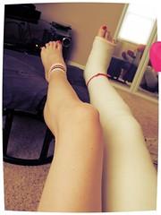 025 (katyacaster) Tags: broken leg cast woman