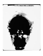 SkullRX2-4 (Federici Luca) Tags: blackandwhite bw art monochrome analog print pattern arte noiretblanc magic bn spell xray lith analogue magia alternativeprocess radiografia alternativephotography altprocess radiographie incantesimo altproc fotomeccanica retinotipografico tipograficecran craniorx lucafederici