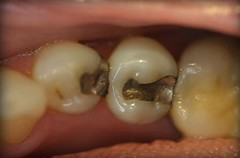Brighten Your Teeth With These Dental Care Pointers (Slimming Plus) Tags: badbreath properdentalcare leasttwice