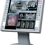歯科用デジタル画像情報ソフトウェアの写真