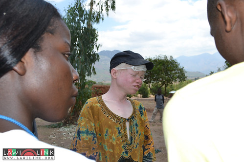 "Phalombe lawilink albino_0395 • <a style=""font-size:0.8em;"" href=""http://www.flickr.com/photos/132148455@N06/23507486329/"" target=""_blank"">View on Flickr</a>"