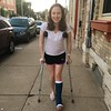 kst_13702627_n (cb_777a) Tags: broken leg ankle foot cast crutches toes usa