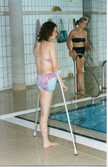 DORI_822 (cb_777a) Tags: germany foot cancer disabled crutches survivor amputee onelegged