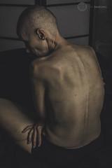 IMG_8785logo (zenimaging) Tags: cancer liver portrait seminude canoneosrebelsl1100d body figure health medicine