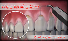 Home Remedies And Fixing Receding Gums (IndependentInvestors) Tags: periodontaldiseasecauses cankersores periodontaldisease drymouthmouthwash badbreath recedinggumstreatment