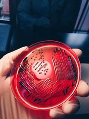 Salmonella Paratyphi B (Javier Díaz Munita) Tags: science medical laboratory clínica medica microbiology tecnologia tecnología udp microbiología médica microbiologia