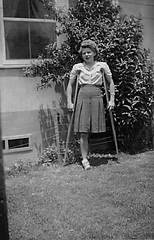 SAK Amputee (jackcast2015) Tags: handicapped disabledwoman crippledwoman infantileparalysis crutches amputee sakamputee