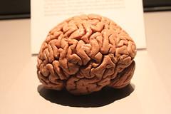 Science World - October 15, 2015 (rieserrano) Tags: brain bodyworlds plastination