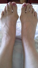 Ukrainian mature feet 47 y.o. (PawelIwaniak) Tags: feet mature bunions