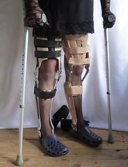 Pair of braces 2 (JKiste2008) Tags: leg brace calipers