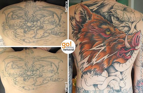 Tattoo removal to tattoo cover up
