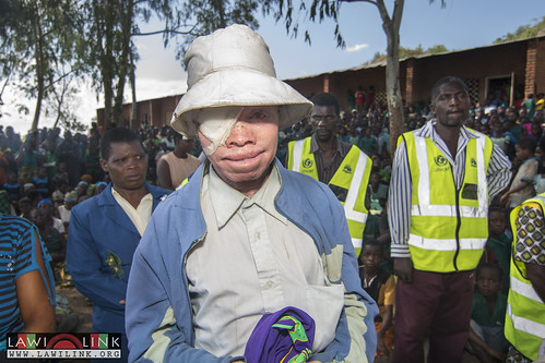 "Phalombe Lawilink Albinism_14 • <a style=""font-size:0.8em;"" href=""http://www.flickr.com/photos/132148455@N06/23849543846/"" target=""_blank"">View on Flickr</a>"