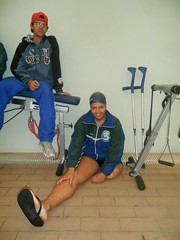 i76594 amputee crutches (cb_777a) Tags: brazil foot stump disabled amputee onelegged