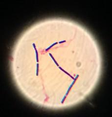 IMG_5939 (Marcin Równicki) Tags: clostridium bacteria microbe micro