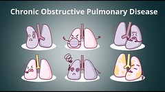 Chronic obstructive pulmonary disease (Just for Hearts) Tags: chronic obstructive pulmonary disease