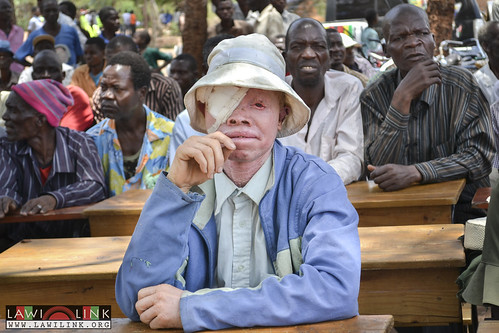 "Phalombe Lawilink Albinism_19 • <a style=""font-size:0.8em;"" href=""http://www.flickr.com/photos/132148455@N06/23507704169/"" target=""_blank"">View on Flickr</a>"